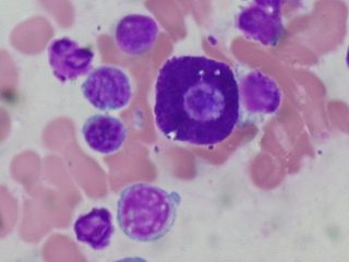 Mast_Cell,_Bone_Marrow_Aspirate,_Wright_Stain_(5916735712)